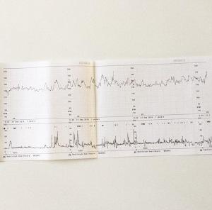Blog-grossesse-123soleil-echo-dernier-trimestre-maturation-poumons-liquide-amniotique-monitoring-2